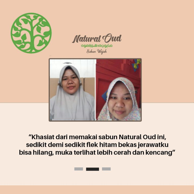 Testimoni Natural Oud 3