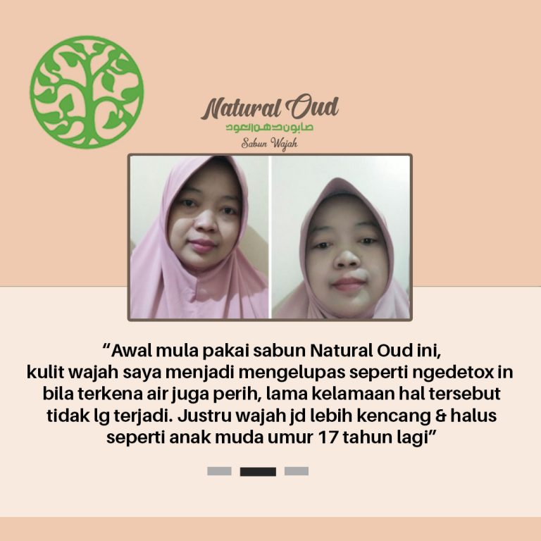 Testimoni Natural Oud 9